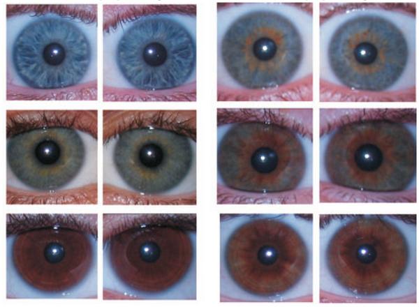 variazione_colore_dettaglio