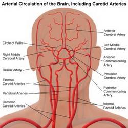arterie_cerebrali_lo